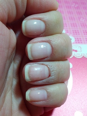 Old Fashioned Acrylic Overlays On Natural Nails Adornment - Nail ...